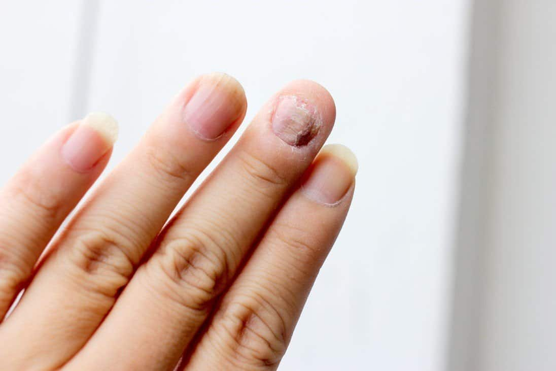 14 Home Remedies for Nail Fungus: Plus Bonus Remedy