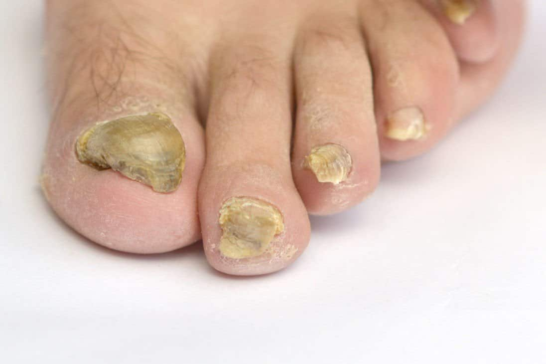 How Do You Get Nail Fungus? Reasons Revealed