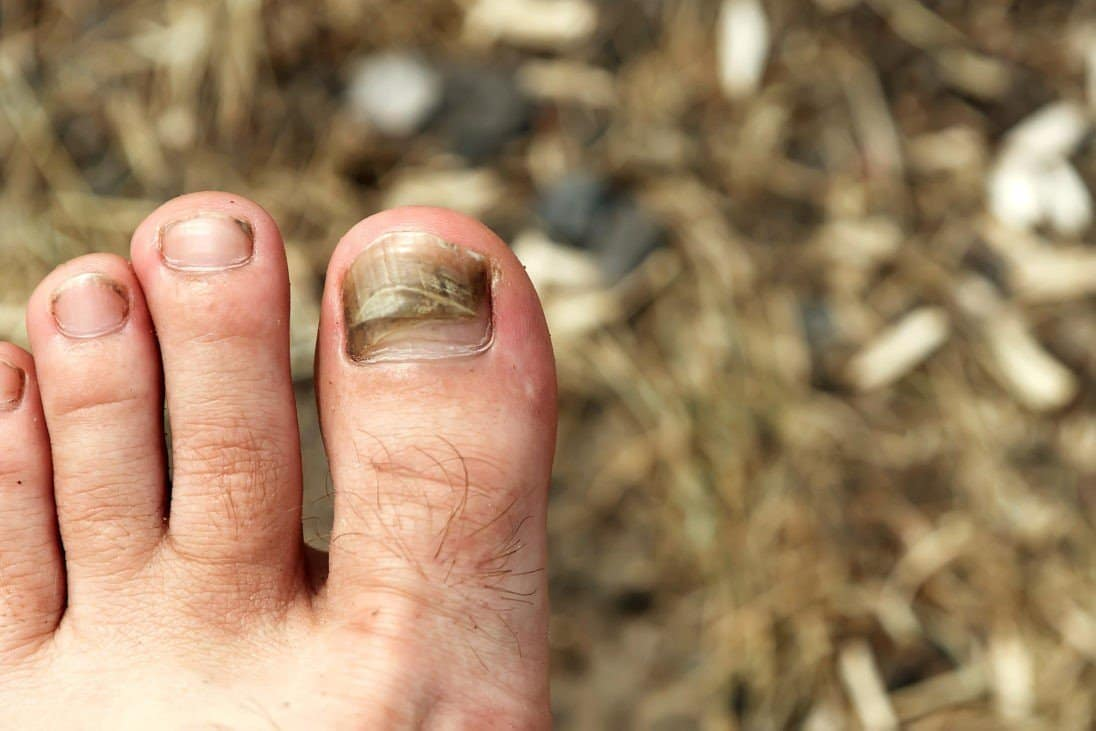 Black Toenail Fungus: Is There Such Thing?