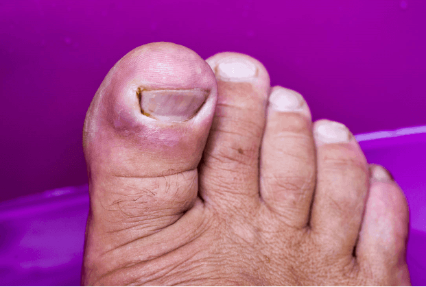 Toenail Fungus: How Exactly Do You Get Rid of It?