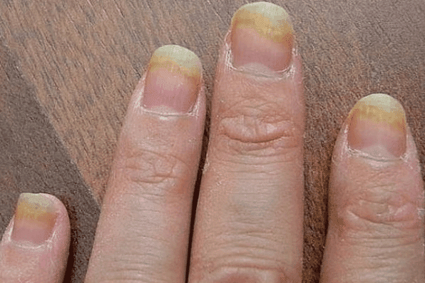 Fungus In Your Acrylic Nail: Why?