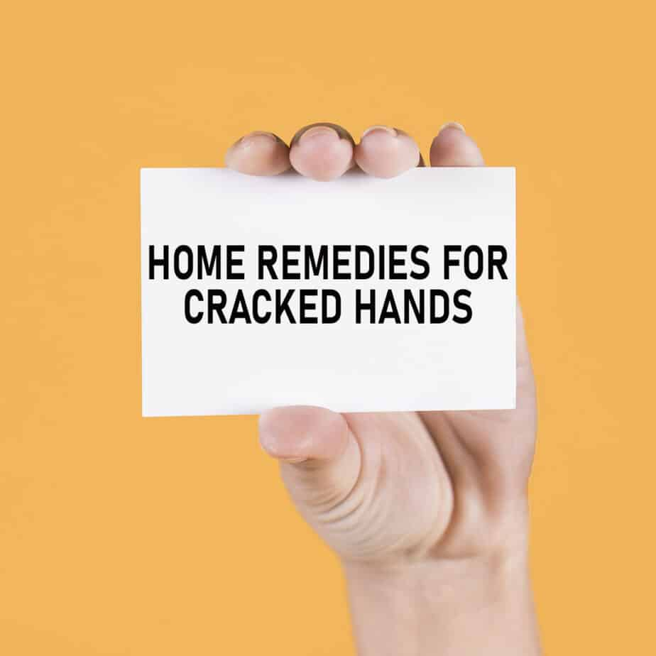 No Need To Spend A Fortune On These: Dry Cracked Hands