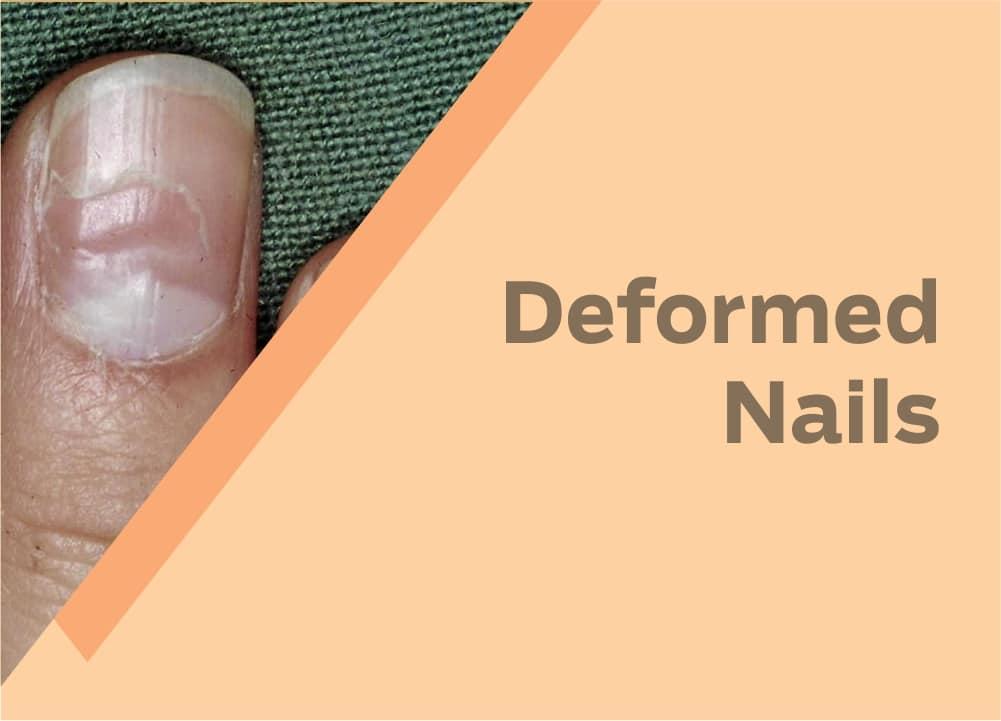 Deformed Nails